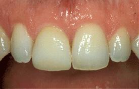 a9598f0145bbc Facette dentaire Combs La Ville au Cabinet Dentaire Kuhn et Associés